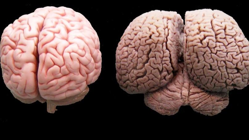 comparación cerebro humano, cerebro delfín, cómo duermen los delfines