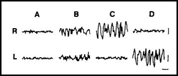 electroencefalograma del sueño de un delfín, cómo duermen los delfines